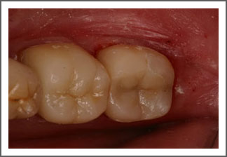 Crown After Treatment Image Dental Associates of Delaware