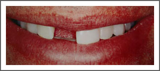 Dental Implant Before Image Dental Associates of Delaware