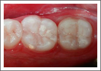 Tooth Colored Restoration After Image Dental Associates of Delaware Brandywine Wilmington Hockessin Middletown