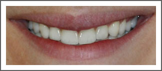 Veneers After Image Dental Associates of Delaware