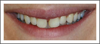 Veneers Before Image Dental Associates of Delaware