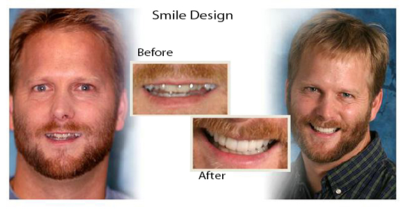 Smile Gallery Dental Associates of Delaware | Brandywine